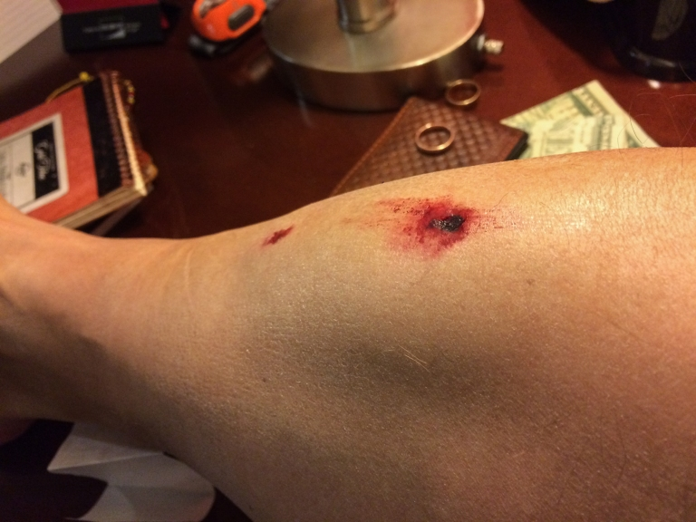 This is what happens when a big chunk of ice cracks you in the shin.